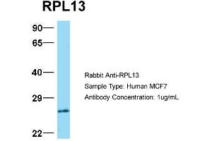 Western Blotting (WB) image for anti-Ribosomal Protein L13 (RPL13) (C-Term) antibody (ABIN183901)
