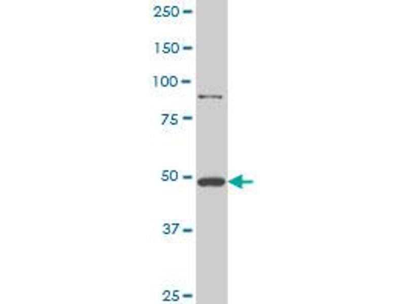 Western Blotting (WB) image for anti-Huntingtin (HTT) (AA 81-190), (partial) antibody (ABIN516382)