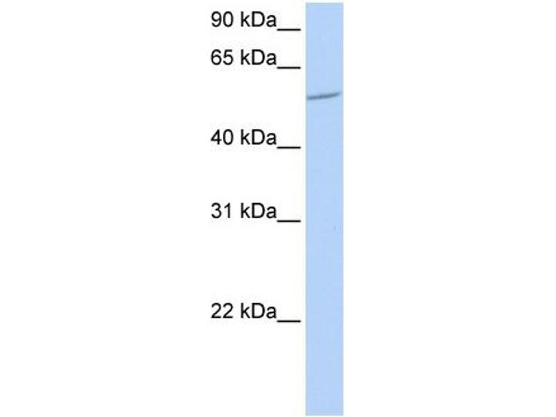 Western Blotting (WB) image for anti-BTB (POZ) Domain Containing 1 (BTBD1) (N-Term) antibody (ABIN501286)