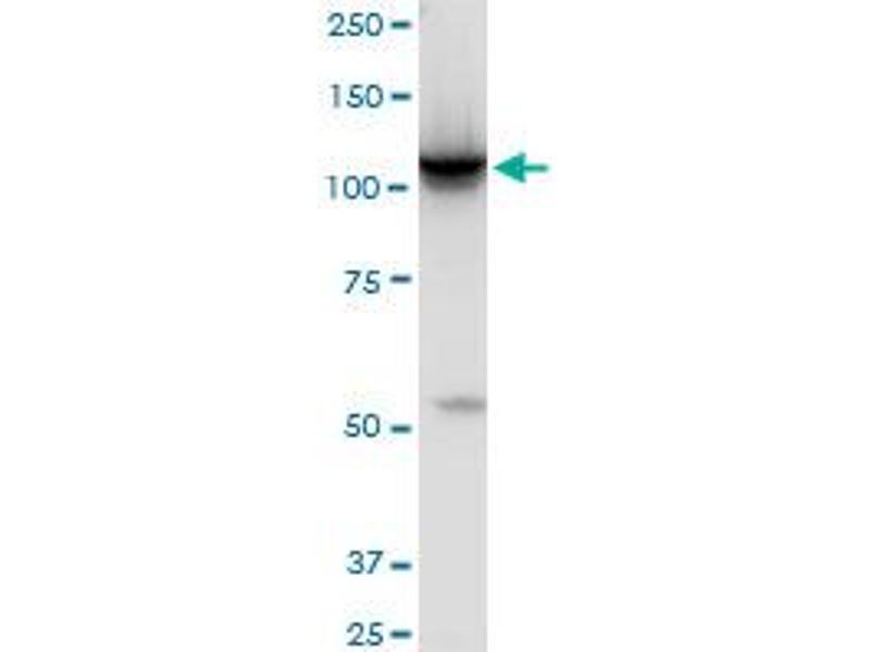 Western Blotting (WB) image for anti-Hexokinase 2 (HK2) (AA 818-917), (partial) antibody (ABIN516457)