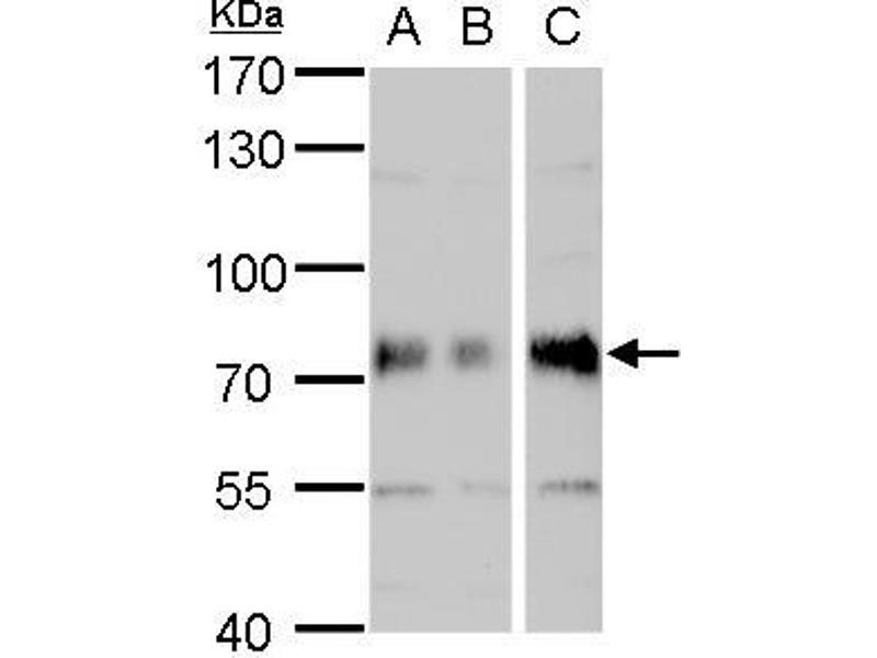 Western Blotting (WB) image for anti-Dystrophia Myotonica-Protein Kinase (DMPK) (Center) antibody (ABIN2854986)