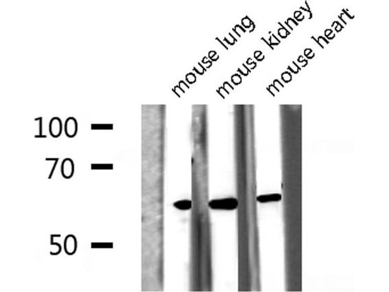 Image no. 3 for anti-V-Src Sarcoma (Schmidt-Ruppin A-2) Viral Oncogene Homolog (Avian) (SRC) (pTyr418) antibody (ABIN6255912)