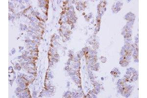 Immunohistochemistry (Paraffin-embedded Sections) (IHC (p)) image for anti-Protein-tyrosine Phosphatase 1C (PTPN6) (Center) antibody (ABIN442153)