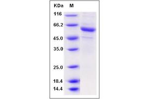 Image no. 1 for Pregnancy Specific beta-1-Glycoprotein 6 (PSG6) (AA 1-424) protein (His tag) (ABIN2005922)