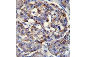Image no. 1 for anti-Protein Phosphatase 1, Regulatory Subunit 37 (PPP1R37) (AA 43-71), (N-Term) antibody (ABIN953233)