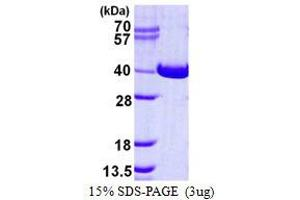 Image no. 1 for N-Acetylglucosamine Kinase (NAGK) protein (His tag) (ABIN1098243)
