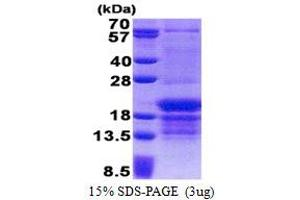 Image no. 1 for Poly(rC) Binding Protein 1 (PCBP1) (AA 1-163) protein (His tag) (ABIN5853223)