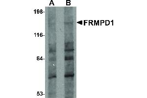Image no. 1 for anti-FERM and PDZ Domain Containing 1 (FRMPD1) (C-Term) antibody (ABIN6655525)