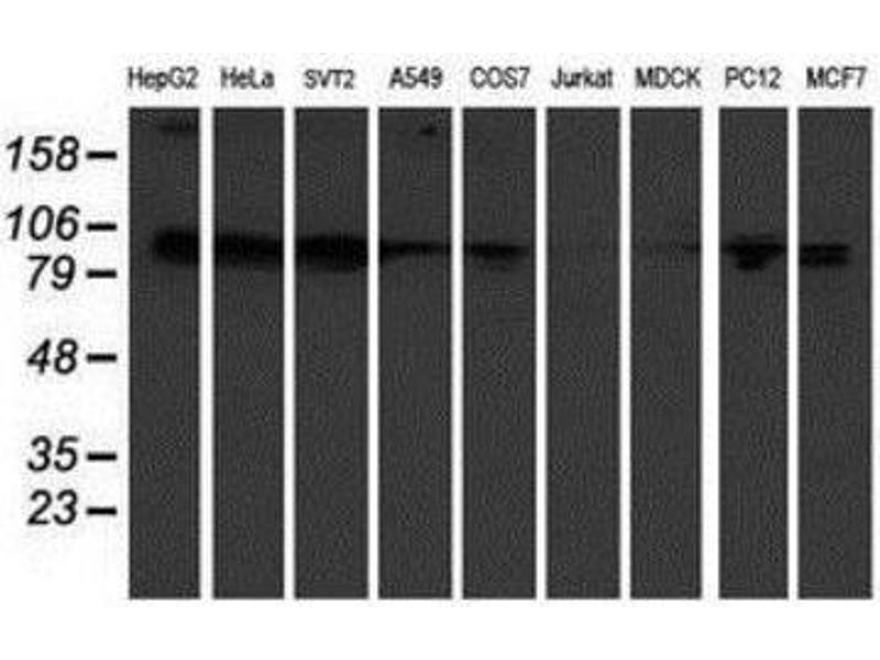 Western Blotting (WB) image for anti-KIF2C antibody (Kinesin Family Member 2C) (ABIN4328842)
