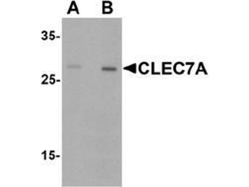 Western Blotting (WB) image for anti-CLEC7A antibody (C-Type Lectin Domain Family 7, Member A) (Middle Region) (ABIN1449932)