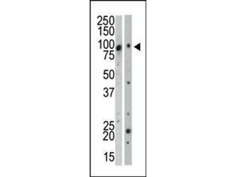 Western Blotting (WB) image for anti-MAP3K12 antibody (Mitogen-Activated Protein Kinase Kinase Kinase 12) (C-Term) (ABIN359408)