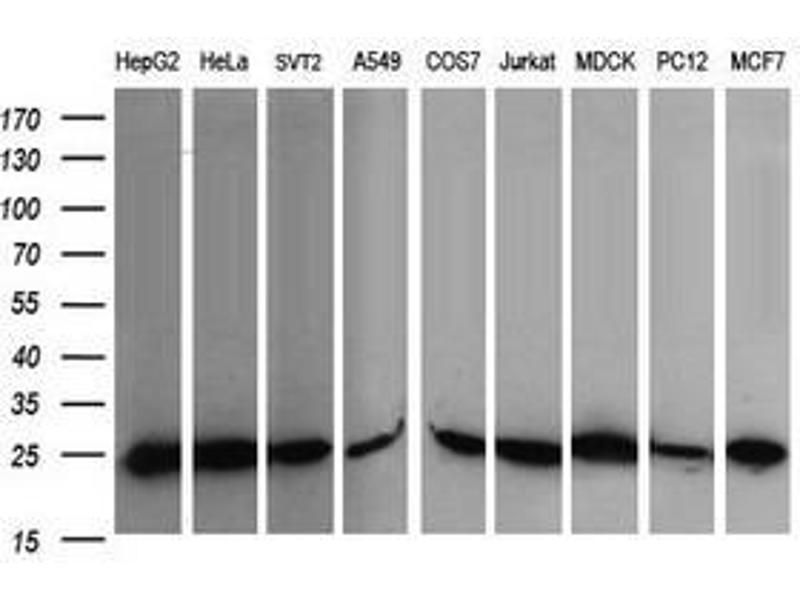 image for anti-V-Ral Simian Leukemia Viral Oncogene Homolog B (Ras Related, GTP Binding Protein) (Ralb) antibody (ABIN1500584)