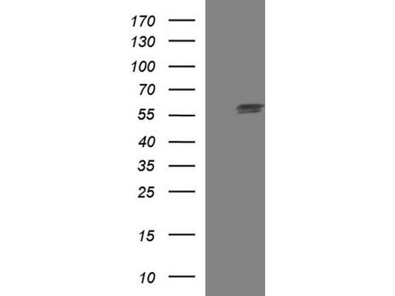 Western Blotting (WB) image for anti-TUBA1A antibody (Tubulin, alpha 1a) (ABIN2671428)