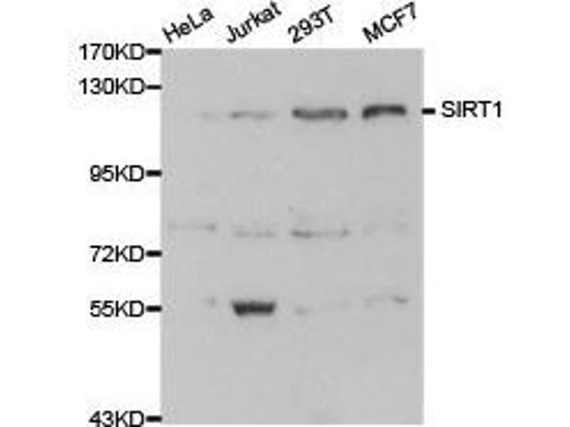 Western Blotting (WB) image for anti-Sirtuin 1 (SIRT1) (C-Term) antibody (ABIN1874784)