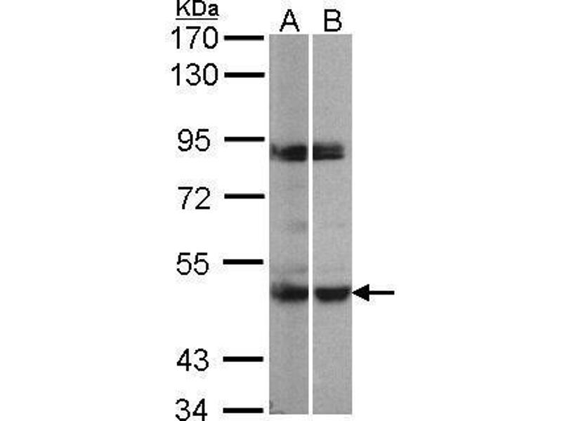 Western Blotting (WB) image for anti-MAPKAP Kinase 5 antibody (Mitogen-Activated Protein Kinase-Activated Protein Kinase 5) (Center) (ABIN2856547)
