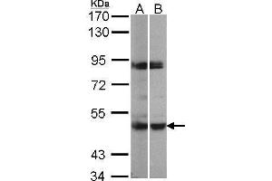 Image no. 1 for anti-Mitogen-Activated Protein Kinase-Activated Protein Kinase 5 (MAPKAPK5) (Center) antibody (ABIN2856547)