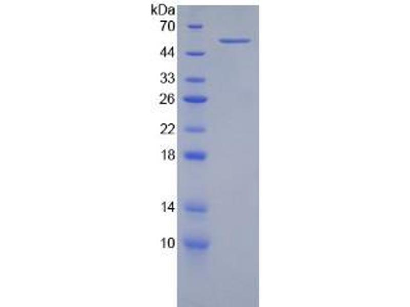 Integrin beta 2 (ITGB2) ELISA Kit (2)