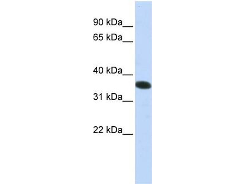 Western Blotting (WB) image for anti-Chromosome 21 Open Reading Frame 59 (C21orf59) (N-Term) antibody (ABIN405773)