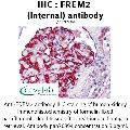 anti-FREM2 antibody (Fras1 Related Extracellular Matrix Protein 2) (Internal Region)