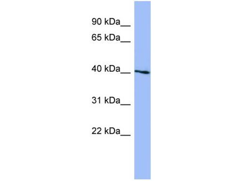 Western Blotting (WB) image for anti-SGK1 antibody (serum/glucocorticoid Regulated Kinase 1) (N-Term) (ABIN2786820)