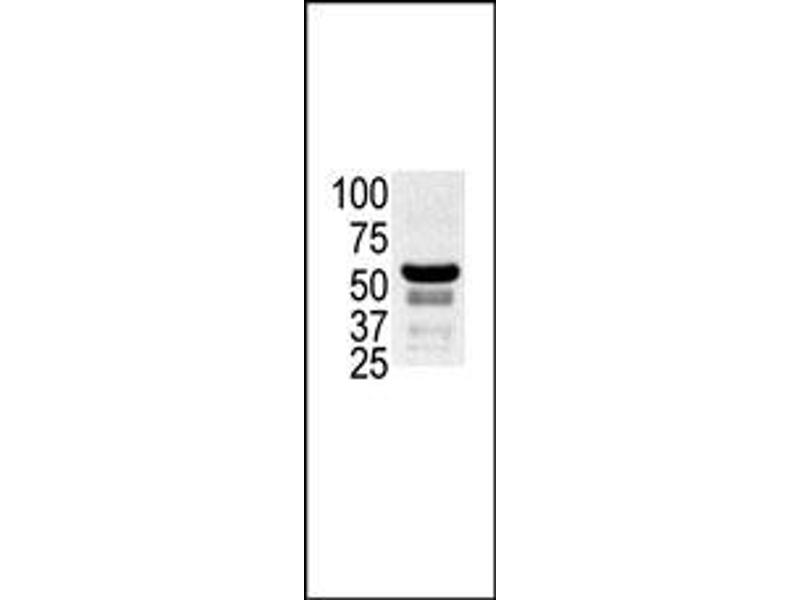 image for anti-P21-Activated Kinase 2 (PAK2) (N-Term) antibody (ABIN360318)
