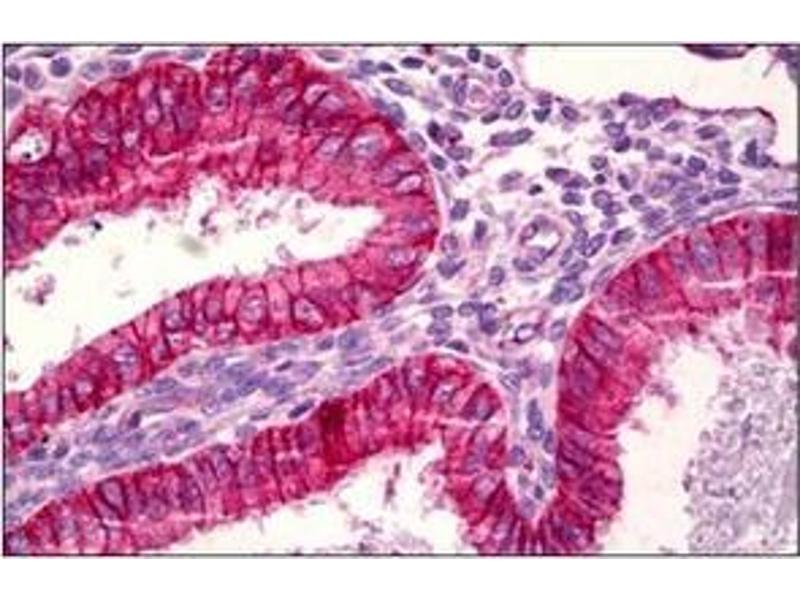 Immunohistochemistry (Paraffin-embedded Sections) (IHC (p)) image for anti-BCL2-Associated X Protein (BAX) (AA 145-157), (Internal Region) antibody (ABIN5611595)
