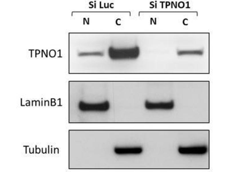 Western Blotting (WB) image for anti-Transportin 1 (TNPO1) antibody (ABIN269569)