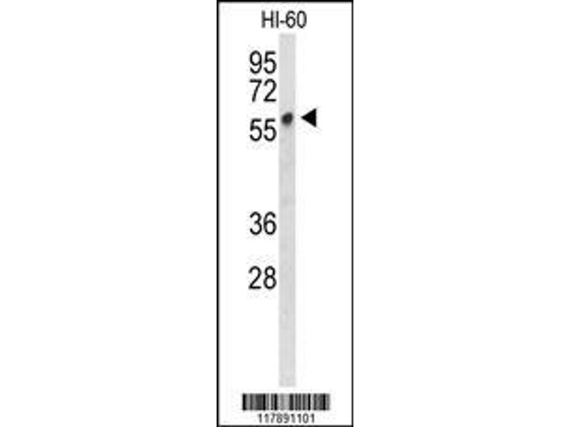 Western Blotting (WB) image for anti-PLVAP antibody (Plasmalemma Vesicle Associated Protein) (AA 214-242) (ABIN653326)