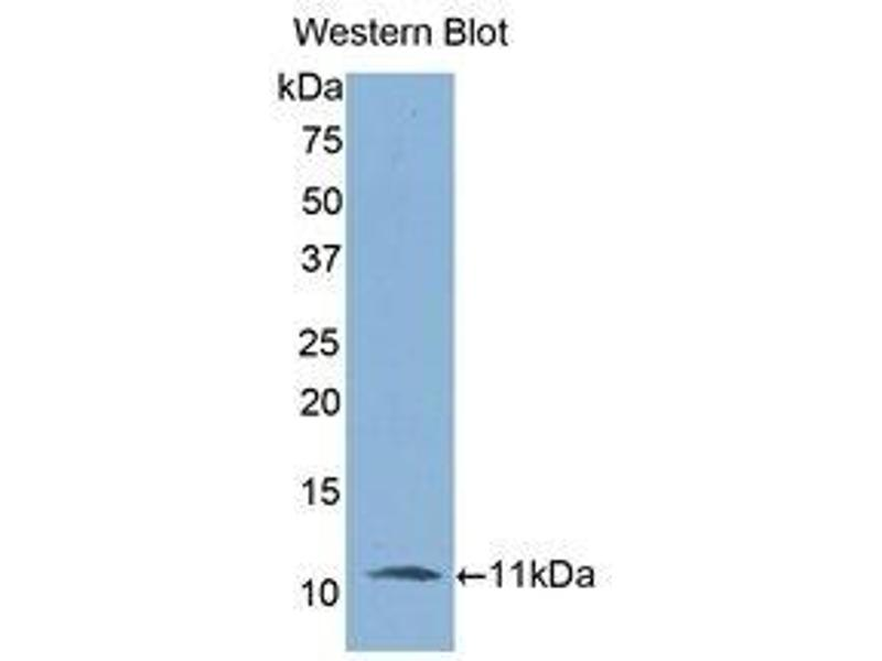 Western Blotting (WB) image for anti-Interleukin-6 Receptor (IL6R) (AA 19-108) antibody (ABIN1859438)