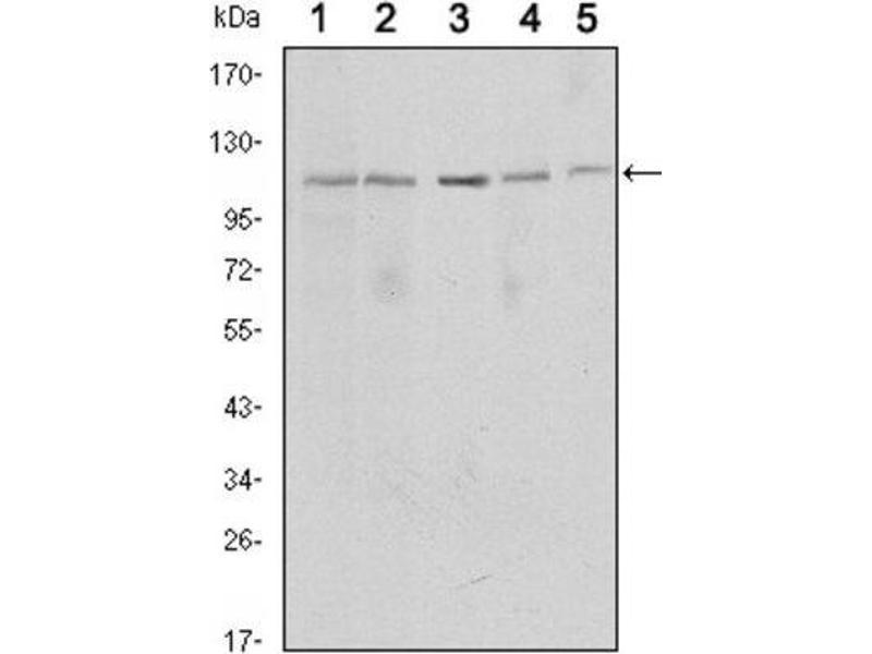 Western Blotting (WB) image for anti-SIRT1 antibody (Sirtuin 1) (ABIN1846081)