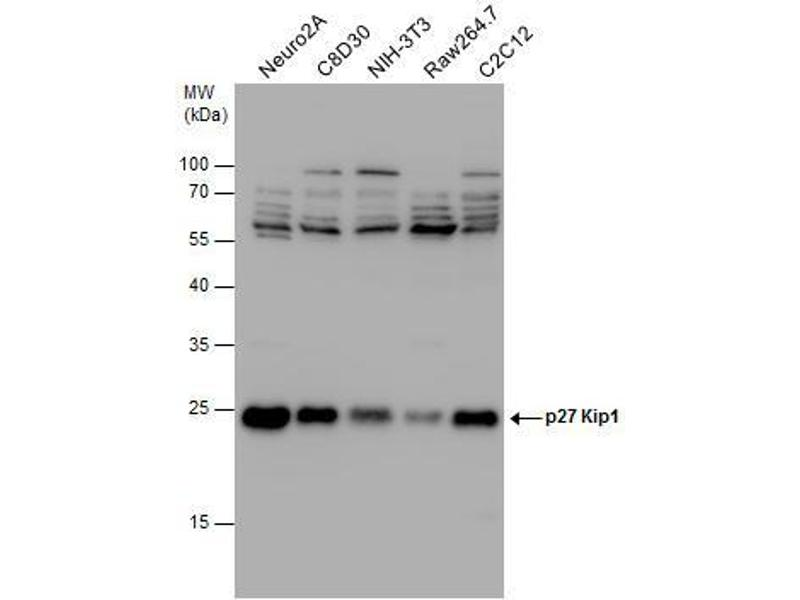 Western Blotting (WB) image for anti-Cyclin-Dependent Kinase Inhibitor 1B (p27, Kip1) (CDKN1B) (Center) antibody (ABIN2854753)