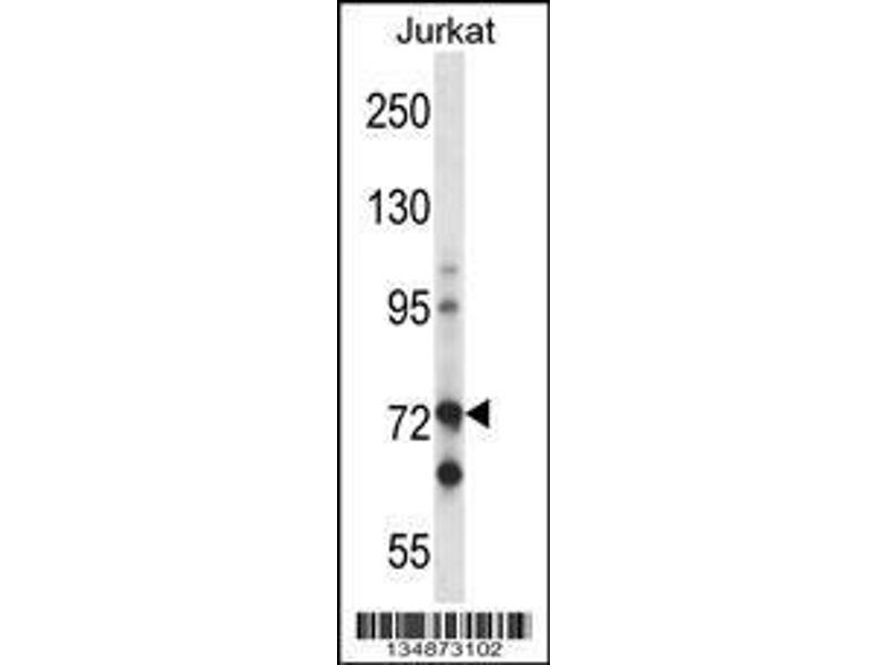 Western Blotting (WB) image for anti-RAF1 antibody (V-Raf-1 Murine Leukemia Viral Oncogene Homolog 1) (N-Term) (ABIN2491390)