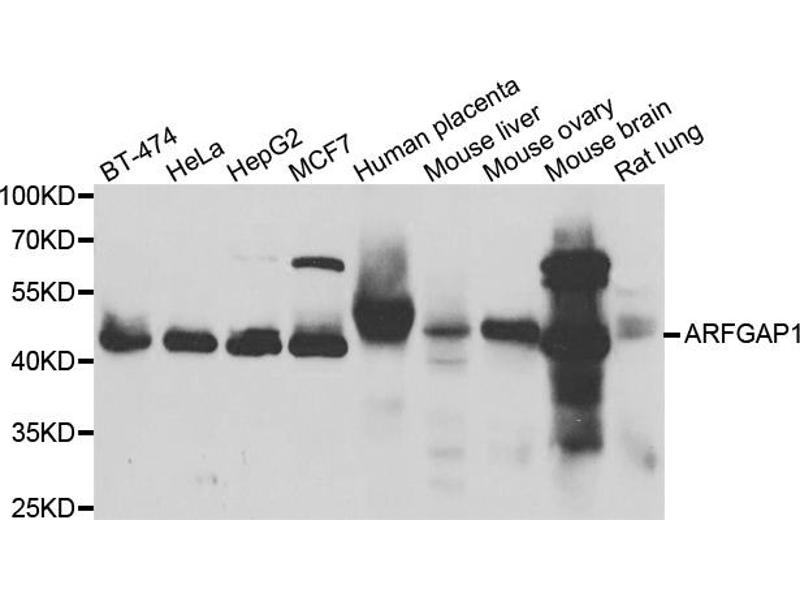 Western Blotting (WB) image for anti-ADP-Ribosylation Factor GTPase Activating Protein 1 (ARFGAP1) antibody (ABIN2970468)