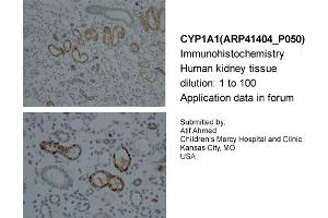 Image no. 2 for anti-Cytochrome P450, Family 1, Subfamily A, Polypeptide 1 (CYP1A1) (Middle Region) antibody (ABIN2776792)