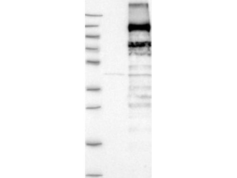 Western Blotting (WB) image for anti-Mitogen-Activated Protein Kinase Kinase Kinase 14 (MAP3K14) antibody (ABIN5950413)