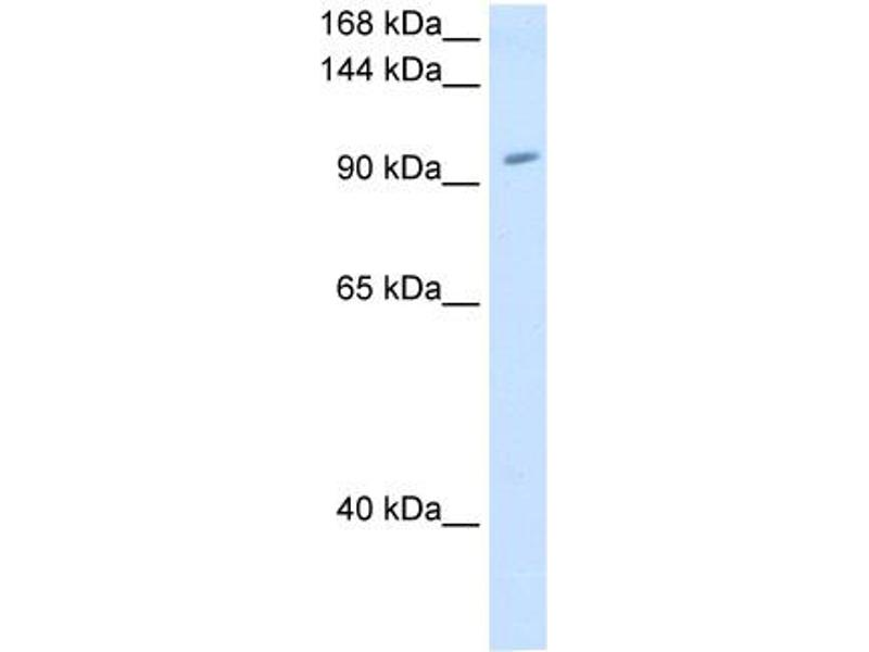 Western Blotting (WB) image for anti-Ring Finger Protein 40, E3 Ubiquitin Protein Ligase (RNF40) (C-Term) antibody (ABIN310439)