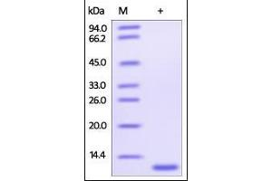 Image no. 1 for Glutaredoxin 1 (GRX1) (AA 1-106) protein (His tag) (ABIN2181166)