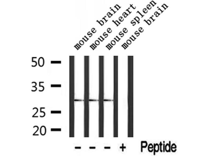Western Blotting (WB) image for anti-Testis-Specific Serine Kinase 3 (TSSK3) antibody (ABIN6258340)