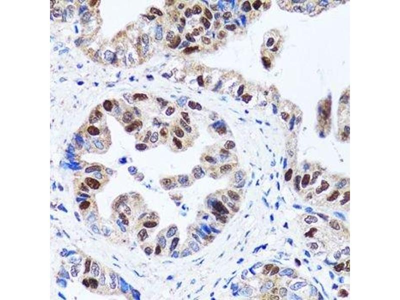 Immunohistochemistry (Paraffin-embedded Sections) (IHC (p)) image for anti-Ubiquitin-Like, Containing PHD and RING Finger Domains, 1 (UHRF1) antibody (ABIN3023232)