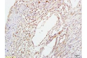 Immunohistochemistry (Paraffin-embedded Sections) (IHC (p)) image for anti-SMAD, Mothers Against DPP Homolog 3 (SMAD3) (pSer423), (pSer425) antibody (ABIN746138)