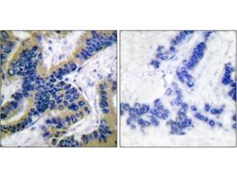 Immunohistochemistry (IHC) image for anti-Caspase 6, Apoptosis-Related Cysteine Peptidase (CASP6) (Cleaved-Asp162), (AA 130-179) antibody (ABIN1536082)