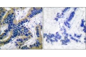 Immunohistochemistry (IHC) image for anti-Caspase 6 antibody (Caspase 6, Apoptosis-Related Cysteine Peptidase) (Cleaved-Asp162) (ABIN1536082)