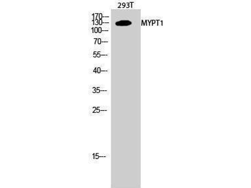 Image no. 1 for anti-Myosin Phosphatase, Target Subunit 1 (PPP1R12A) (Thr103) antibody (ABIN3185745)