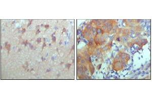 Image no. 1 for anti-Receptor Tyrosine-Protein Kinase ErbB-3 (ERBB3) (AA 1175-1275) antibody (ABIN969112)