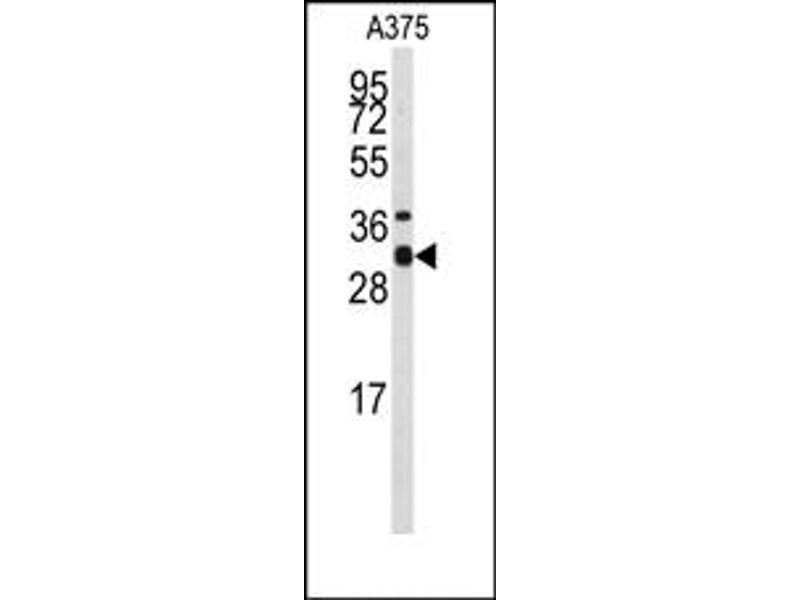 image for anti-Syntaxin 3 (STX3) (Middle Region) antibody (ABIN357986)