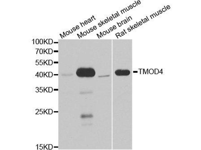 Image no. 2 for anti-Tropomodulin 4 (TMOD4) antibody (ABIN2560454)
