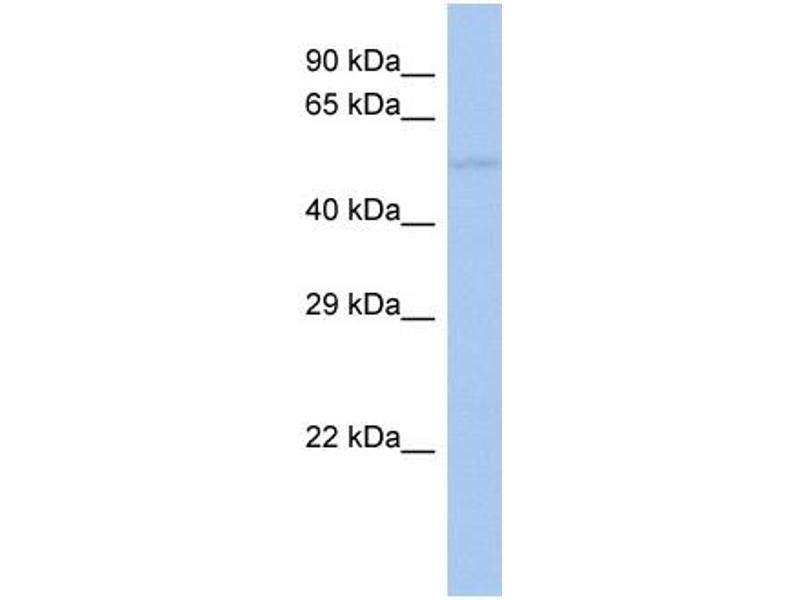 Western Blotting (WB) image for anti-Transforming Growth Factor beta 1 Induced Transcript 1 (TGFB1I1) (Middle Region) antibody (ABIN2777947)