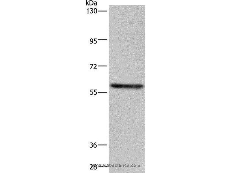 Western Blotting (WB) image for anti-TGF-beta Activated Kinase 1/MAP3K7 Binding Protein 1 (TAB1) antibody (ABIN2423759)