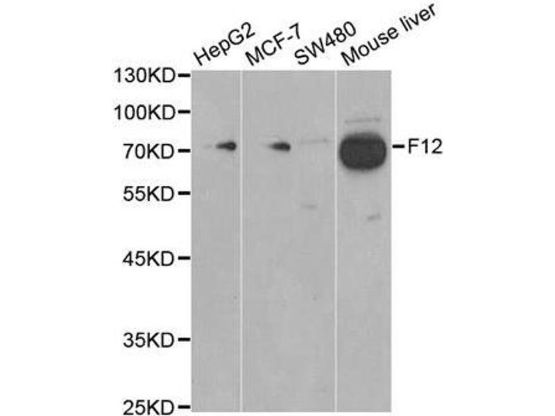 Western Blotting (WB) image for anti-Coagulation Factor XII (Hageman Factor) (F12) antibody (ABIN1872625)