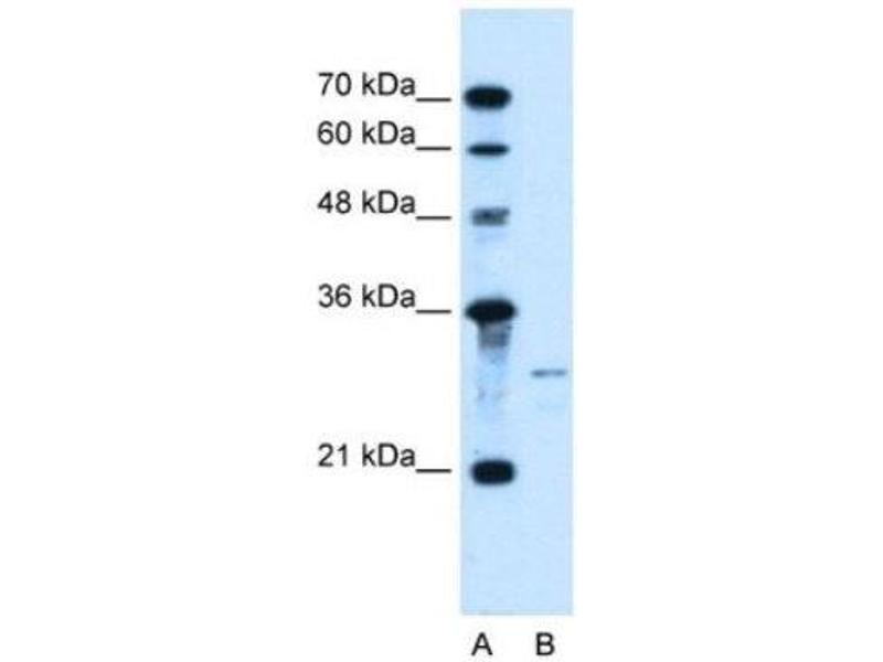Western Blotting (WB) image for anti-Sonic Hedgehog (SHH) (N-Term) antibody (ABIN4893080)